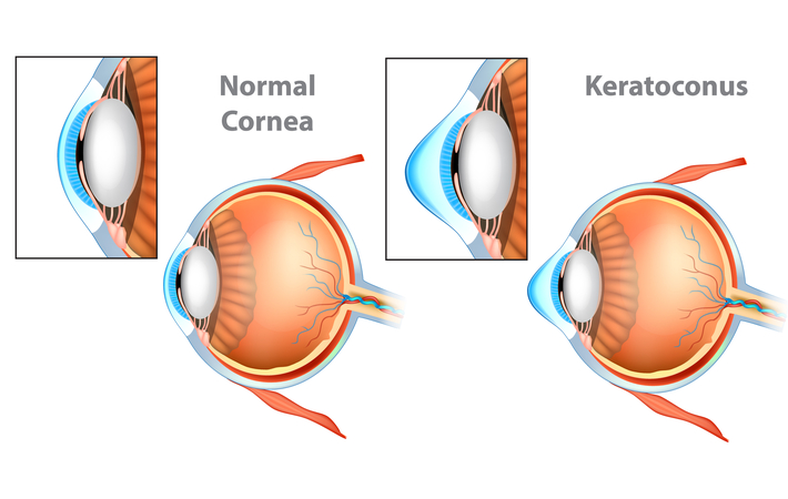 diagram of a cone shaped eye with keratoconus
