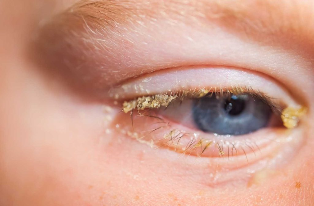 closeup of child's eye with thick pink eye discharge coating his eyelashes